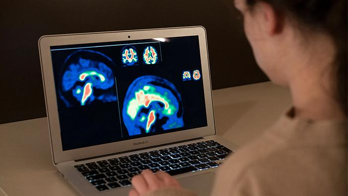 European researchers improve the sensitivity to detect the early stages of Alzheimer's disease